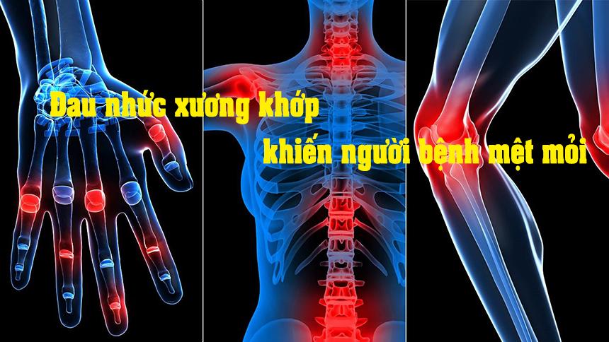 Glucosamine hỗ trợ rất tốt cho đau nhức xương khớp